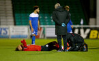 SOUTHAMPTON, ENGLAND - NOVEMBER 02: Beni Smales-Braithwaite of Southampton receiving treatment during the Hampshire FA Senior Cup semi-final between Eastleigh FC and Southampton FC B Team at Silverlake Stadium on November 02, 2020 in Southampton, England. (Photo by Isabelle Field/Southampton FC via Getty Images) (Photo by Isabelle Field/Isabelle Field)